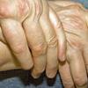 cursus-reumatische-aandoeningen-vernieuwd-vrijdagen-17-april-en-8-mei-en-zaterdag-16-mei